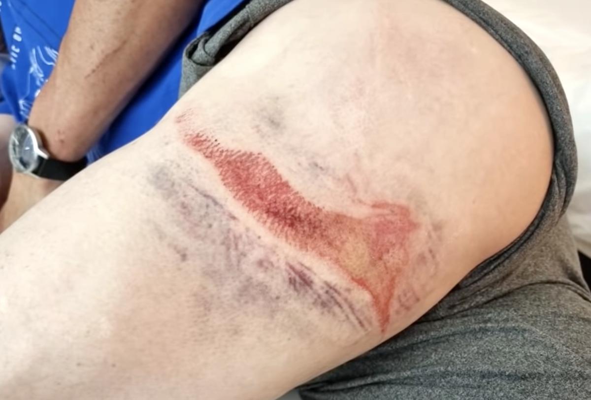 Gare di ciclismo sempre più pericolose